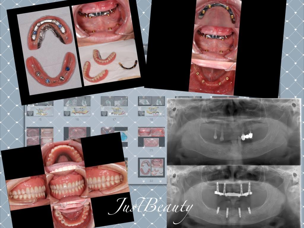 上顎:implant bar overdenture(4顆植體) ;下顎:implant support overdenture(4顆植體)