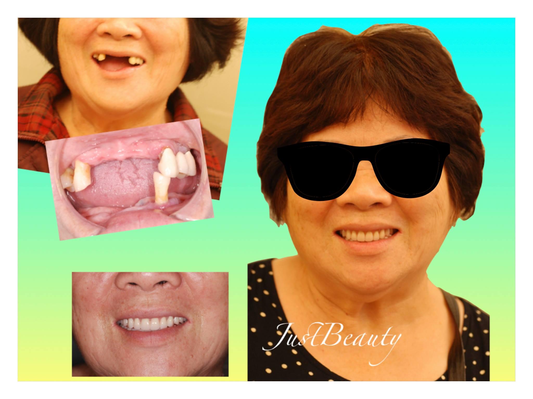 (左上)術前,(右及左下)implant overdenture完成照