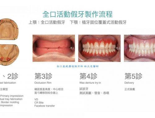正式活動假牙製作流程