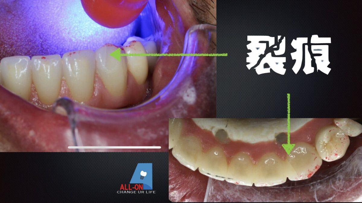 正式假牙裝戴一個月回診發現全鋯冠裂痕